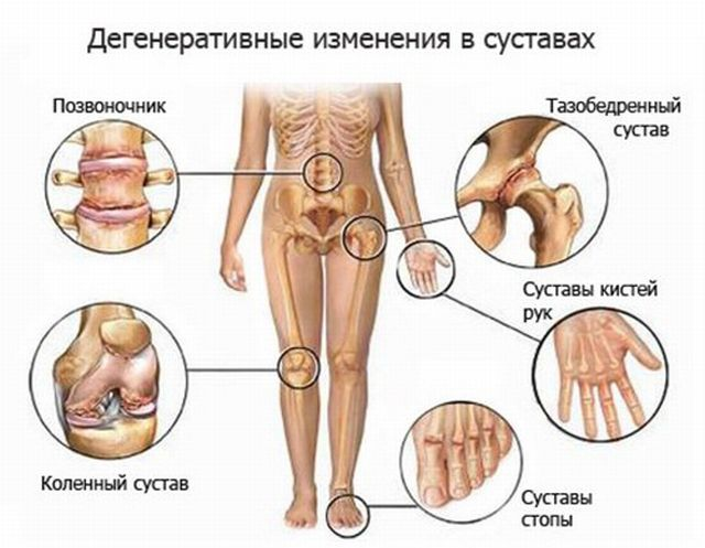 Разрушение суставов