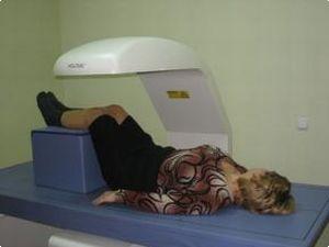диагностика остеостепении
