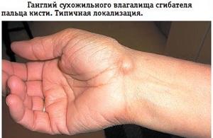 сухожильный ганглий на руке