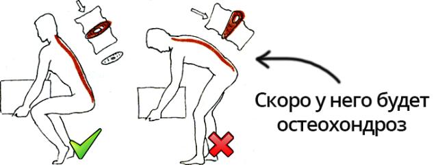 Риск остеохондроза