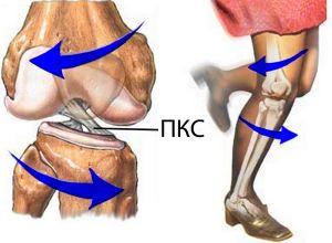 разрыв крестообразной связки колена