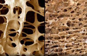 резорбция ткани костной
