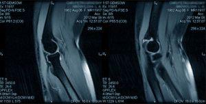 мрт коленного сустава при артрите