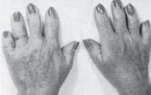 олигодактилия кистей