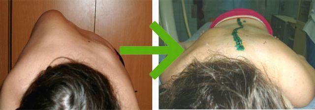 до и после операции при сколиозе