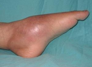 Остеомиелит стопы