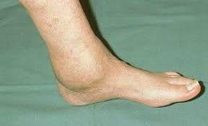 отек ноги в голеностопе