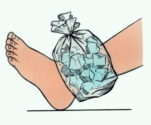 наложение льда на ногу
