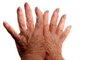 полиостеоартроз рук
