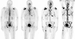 рентген при метастазах