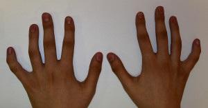 Руки до операции