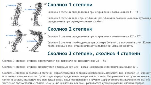 стадии сколиоза