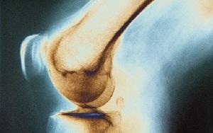 Изображение - Симптомы туберкулеза костей и суставов у взрослых tubik