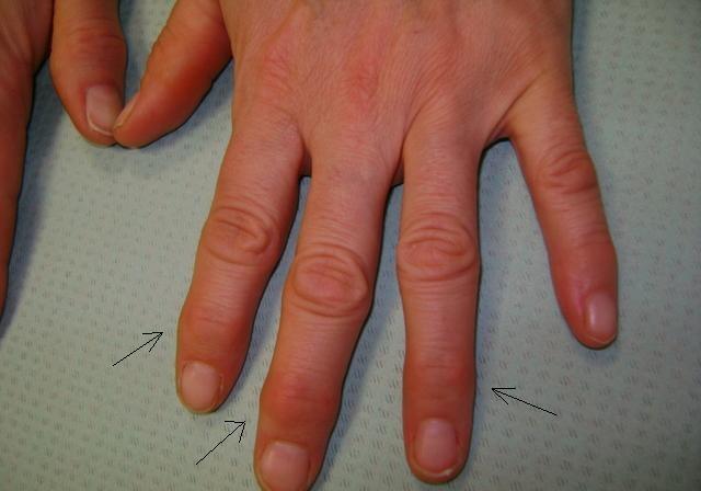 Места поражения суставов при артрозе