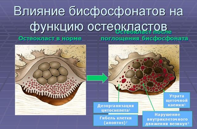 влияние бисфосфонатов на организм