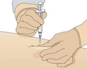 инъекционная форма Бонвива