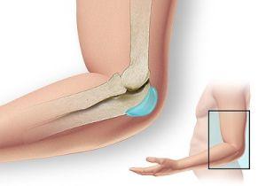 использование Кондранова при остеоартрозе