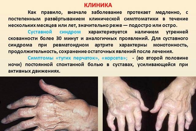 клиническая картина суставного синдрома