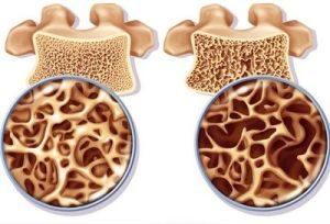 остеопороз костей