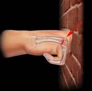 удар рукой в стену