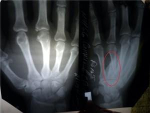 рентген травмированной руки