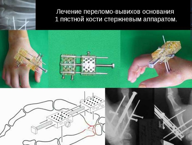 Стержневая хирургия при переломе пястной кости