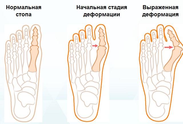 Вальгусная деформация пальцев стопы