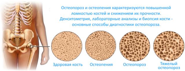 формы разрушения костей