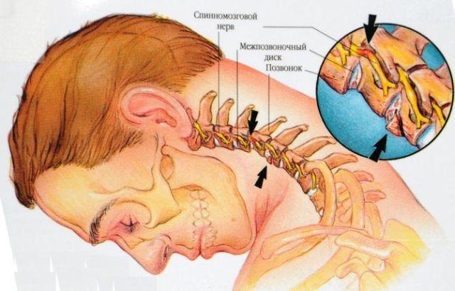 анатомия шейного отдела позвоночника