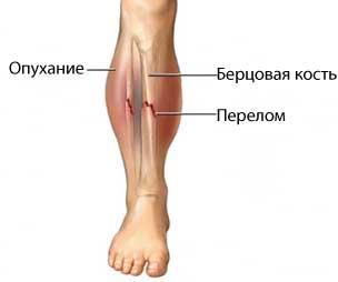 перелом кости открытый