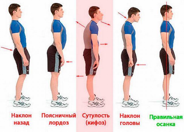 Виды искривлений спины