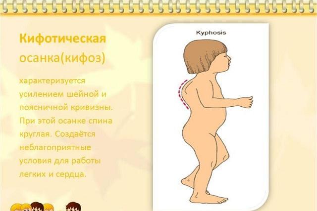 Кифоз и нарушение осанки