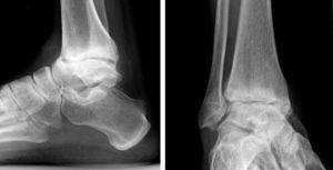 ноги на рентгене
