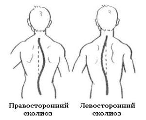 две формы сколиоза