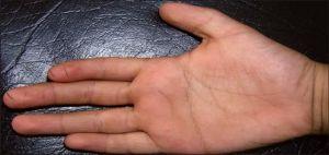 руки сковал ревматоидный артрит