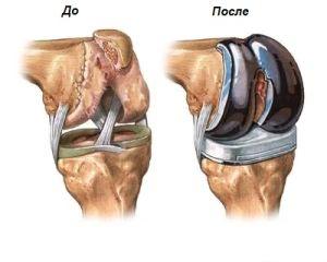 протезирование колена