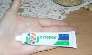 Обезболивающее Кеторол