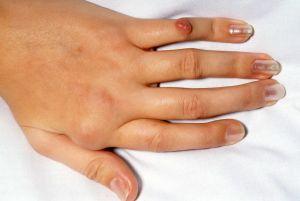 остеоартроз пальцев руки