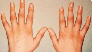 пальцы пораженные артрозом