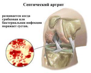 Воспалительный процесс при артрите