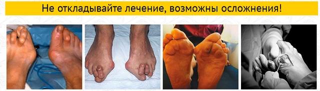 Вальгусная деформация опасная болезнь