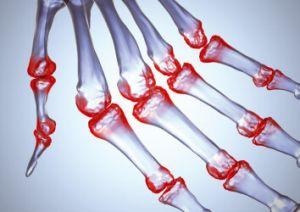 остеоартроз пальцев