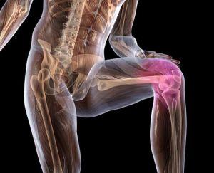 Изображение - Польза бани для суставов osteohondroz-kolena