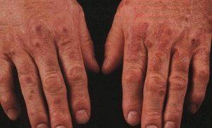 Узелковый полиартериит на руках