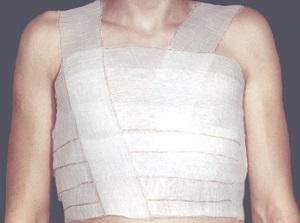перевязка грудной клетки