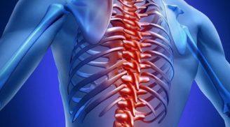 спондилопатия грудного отдела