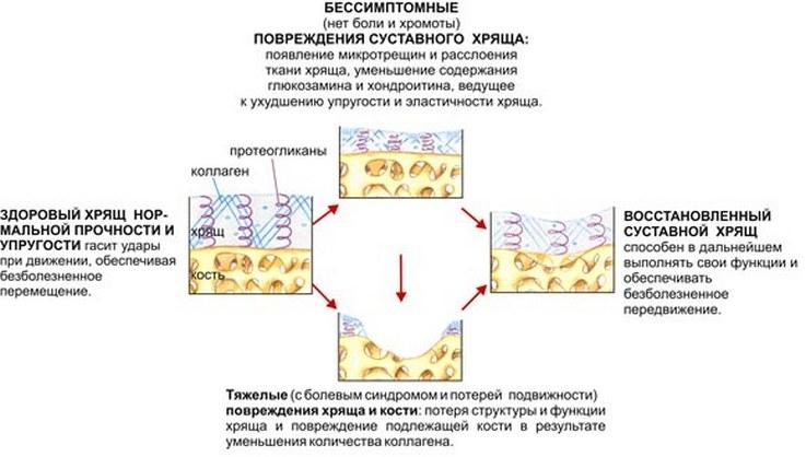 регенерация хряща