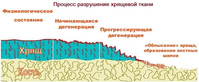 процесс разрушения хрящей