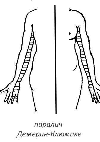 паралич при плексите