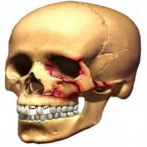 перелом костей черепа